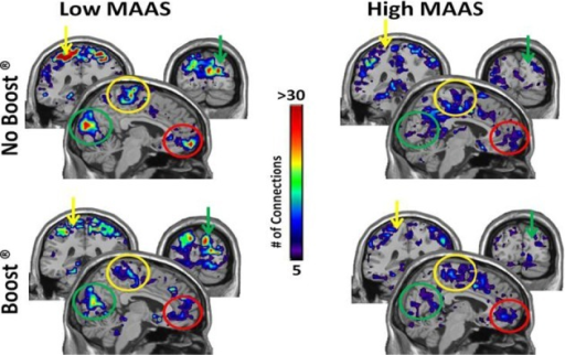 Connectivity Maps from Insula/Auditory Cortex by MAAS Category. This figure shows brain regions that are two steps removed from the auditory cortex. Thus, when tracking connections from the auditory cortex, the colored areas were reached after making two steps. Color bar represents the average number of connections across subjects for each voxel: sensorimotor cortex (yellow arrow), visual cortex (green arrow), orbital frontal cortex (red arrow).