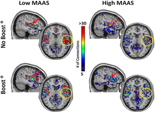 Connectivity Maps from Amygdala by MAAS Category. This figure shows brain regions that are two steps removed from the amygdala. The insula/auditory cortex on the right is highlighted by the yellow circle.