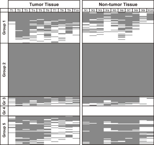 Methylation-specific PCR (MSP) analysis of 239 genes in 10 pairs of tumor and surrounding nontumor tissue. The methylated and unmethylated status is indicated by a gray and a white box, respectively. Genes were divided into subgroups based on the methylation pattern in hepatocellular carcinoma (HCC) tumors and surrounding nonneoplastic liver tissues (see main text).