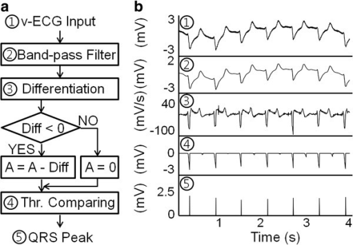 a real time qrs detection algorithm Research related to the pan & tompkins qrs detection algorithm , the most commonly used algorithm, led to the development of a real-time qrs complex detection algorithm that operates according to the slope, amplitude, and width the results showed the sensitivity (se) of this algorithm was of 9975% with a positive predictive value (ppv) of 9954.