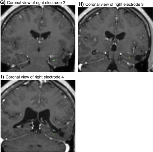 Image coregistration after device implantation. (A) The pulse generator is affixed within a ferrule in the skull and attached to the leads in the brain (not visible) by an insulated electrical conductor that is tunneled under the scalp. (B–I) Implanted electrodes in coronal view of coregistration where each aspect is orthogonal to the long axis of the hippocampus.