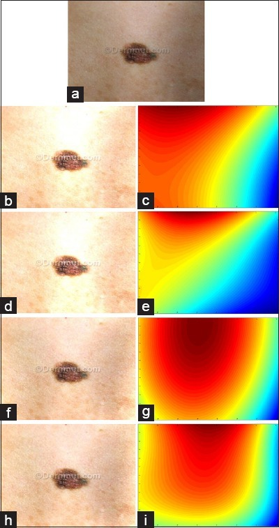 (a) Smoothed image of a skin lesion, (b and c) Results of adaption of two-degree polynomial function on the corners samples, (d and e) Results of adaption of three-degree polynomial function on the corners samples, (f and g) Results of adaption of two-degree polynomial function on the frame samples, (h and i) Results of adaption of three-degree polynomial function on the frame samples