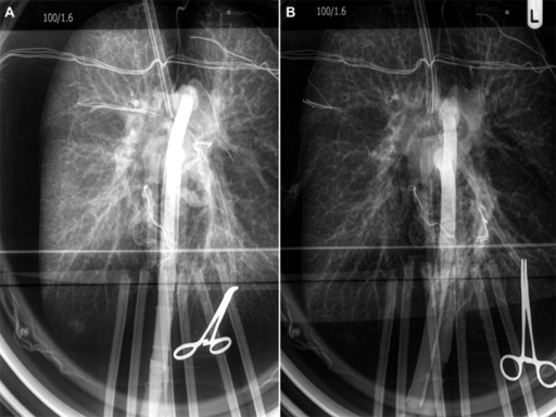 Chest x-ray at the beginning of EVLP (A) and at the end of assessment (B). It is clearly visible that EVLP ameliorates congestion of the lungs.
