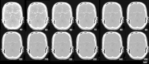 Monoenergetic images (40–150 keV) reconstructed from DECTA in a patient with right temporal hemorrhage, same as Fig. 5. An increase in iodine density at lower energies is shown. At higher energies, the hemorrhage is better appreciated, whereas the iodine attenuation decreases. CNR is higher at lower energies, while SNR increases with higher energies