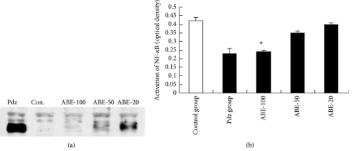 Effect of ABE on protein expression of NF-κB. Values represent the mean ± SEM. *P < 0.05 versus phenylhydrazine group (Pdz: phenylhydrazine).