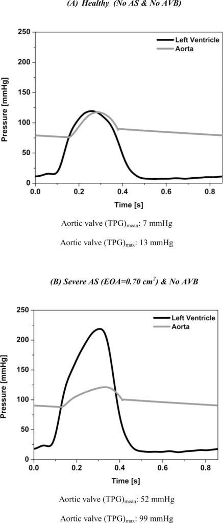 Simulated left ventricle and aorta pressures.(A) Healthy (No AS & No AVB), (B) severe AS (EOA = 0.7 cm2) & No AVB. Stroke volume, heart rate and cardiac output are 75 ml, 70 beats/min and 5.2 l/min, respectively.