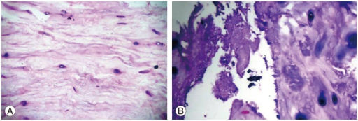 (A) Photomicrograph (H&E, ×40) showing degenerated nucleus pulposus composed of irregualar fibrillar matrix. (B) Photomicrograph (H&E, ×40) showing calcification of the cartilage cells and the surrounding matrix.
