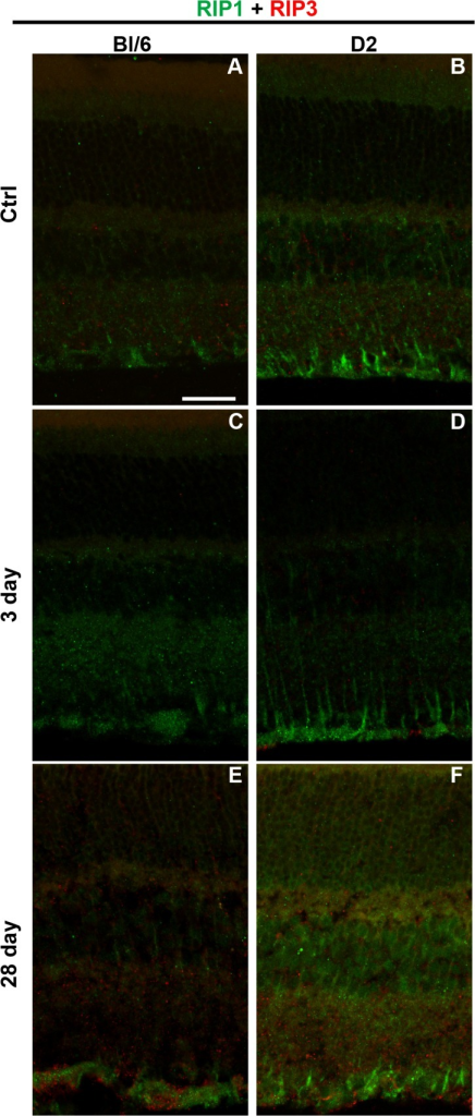 RIP1 and RIP3 immunolabeling increases after injury in both the Bl/6 and D2.Confocal micrographs of retinas from Bl/6 and D2 control eyes (A,B), Bl/6 and D2 3 dpi eyes (C,D) and Bl/6 and D2 28 dpi eyes (E,F). The scale bar in (A) is 50μm and applies to all micrographs.