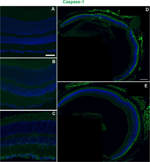 Caspase-1 immunolabeling increases at 28 dpi in the Bl/6 retina.Epifluorescence micrographs of retinas from control (A), 3 dpi (B) and 28 dpi (C) eyes labeled with anti-caspase-1 (green) and DAPI (blue). Caspase-1 immunolabeling at 28dpi is the same in both central (D) and mid-peripheral (E) retina. The scale bar is 50μm in (A-C) and 250μm in (D) and (E).