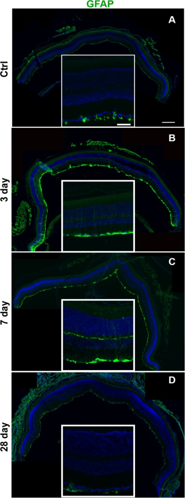 GFAP labeling is increased in the Müller glia of D2 eyes at 3 and 7 dpi.Low and high magnification epifluourescence micrographs of (A) control, (B) 3 dpi, (C) 7 dpi, and (D) 28 dpi retinas labeled with GFAP (green) and DAPI (blue). The scale bar for the high magnification micrographs is 50μm. The scale bar for the low magnification micrographs is 250μm.