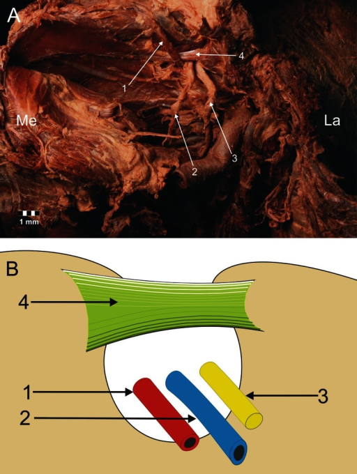 Type III arrangement of the suprascapular nerve, artery and vein location at the suprascapular notch. a Structures at the cadaver, b schematic arrangements. 1 suprascapular artery, 2 suprascapular vein, 3 suprascapular nerve, 4 superior transverse scapular ligament. La lateral, Me medial