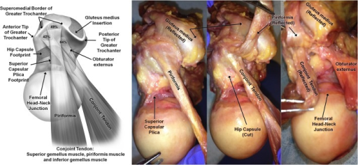 (Left) Illustration and (right) photograph of superior view looking inferiorly at the femoral head, femoral neck, and greater trochanter of a right hip. The insertions of the piriformis, conjoint tendon (superior gemellus, obturator internus, and inferior gemellus), and obturator externus with respect to the superomedial border of the greater trochanter are depicted.