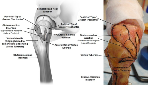(Left) Illustration and (right) photograph of lateral view of a right hip looking medially at the footprint insertions of the greater trochanter. The footprints of the gluteus medius, gluteus minimus, and vastus lateralis with respect to the vastus tubercle are depicted.