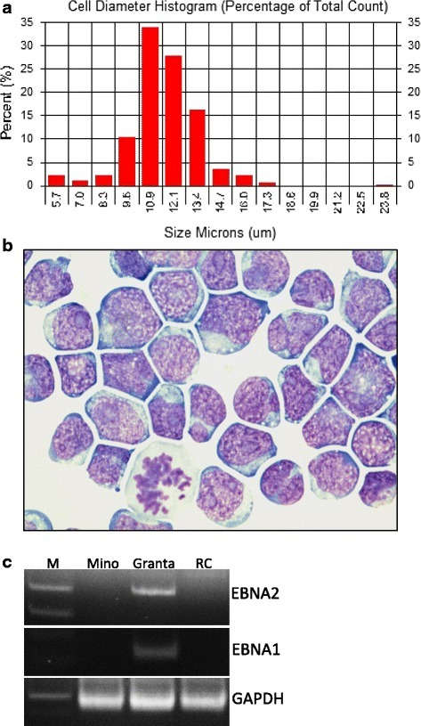 Morphologic and phenotypic features of RC cells. a Distribution of the size (longest diameter) of RC cells after 16 months of cell culturing. b Representative image of H&E-stained RC cells after 16 months in cell culture. c PCR analysis for EBV type 1 (EBNA1) and type 2 (EBNA2) gene in Mino (negative control), Granta (positive control), and RC cell lines. GAPDH serves as a loading control