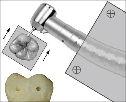 Arrangement of handpiece and tooth for preparation of the cavities.