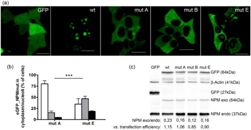 Subcellular distribution of mutated NPM depends on mutation type.(a) eGFP fluorescence from HEK-293T cells transfected with eGFP plasmid (GFP), eGFP_NPMwt (wt), eGFP_NPMmutA (mutA), eGFP_NPMmutB (mutB) or eGFP_NPMmutE (mutE) showing various subcellular distribution of individual NPM variants. The bars represent 20μm. (b) fraction of transfected cells displaying eGFP_NPMmutA (or E) signal only from the cytoplasm (white bars), from the cytoplasm and nucleoli (grey bars) or only from nucleoli (black bars). The error bars in the graph represent ±SD of at least 3 independent experiments. Statistical significance degree of difference between mutA and mutE obtained from two-way ANOVA test was P < 0.001 (***). (c) immunoblot of lysates from HEK-293T cells transfected with individual NPM variants. GFP-NPM (exogenous) is detected at 64 kDa, the endogenous NPM at 37 kDa. β-Actin represents the loading control. Densitometric evaluation of NPM exo/endo level and the ratio of NPMexo/endo expression vs the transfection efficiency (20%, 15%, 13,9% resp. 17,8% for wt, mutA, mutB resp. mutE) are indicated for the individual cell lines.