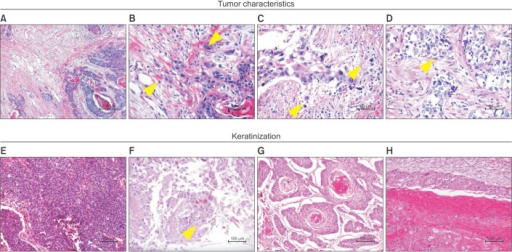 Histologic parameters and patterns of keratinization applied in this study. Tumor budding is observed along tumor edge (A); this is defined as the presence of structures comprising fewer than five tumor cells (arrowheads) at higher magnification (B). Single cell invasion (C) and large nuclei (cancer cell nucleus >4 times than that of a small lymphocyte) (D), nonkeratinization (entire tumor area, <5% keratinization) (E), cytoplasmic keratinization (F), keratin pearl (G), and layered keratinization (H) (H&E stain; A, ×40; B–D, ×400; E–H, ×200).