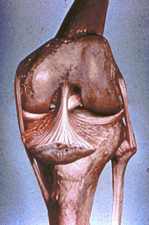 tibial collateral ligament; fibular collateral ligament; anterior cruciate ligament; posterior cruciate ligament; infrapatellar fold; medial meniscus; lateral meniscus