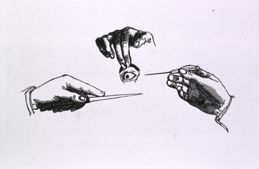 <p>Vignette of three hands about to treat an eye.</p>