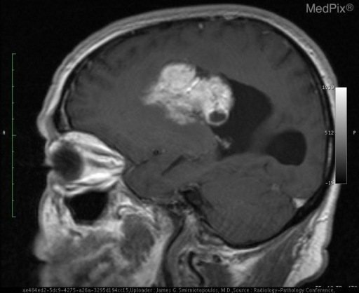 This is a non-contrast T1W sagittal image.  There is a large intraventricular mass with very high signal intensity.
