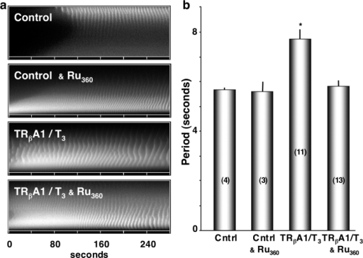 Ru360 blocks T3-bound TRβA1 increases in IP3-induced Ca2+ wave period. (a) Spatial-temporal stacks of the effect of Ru360 treatment on Ca2+ wave activity in control oocytes compared with oocytes expressing TRβA1as labeled. (b) Histogram of average interwave period (seconds) of each group of oocytes shown in a. The asterisk (*) denotes a statistic significance using ANOVA single factor (P < 0.01). Values in parentheses represent the number of oocytes.
