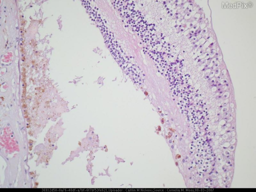 Histology of a patient withSpino-Cerebellar Ataxia.
