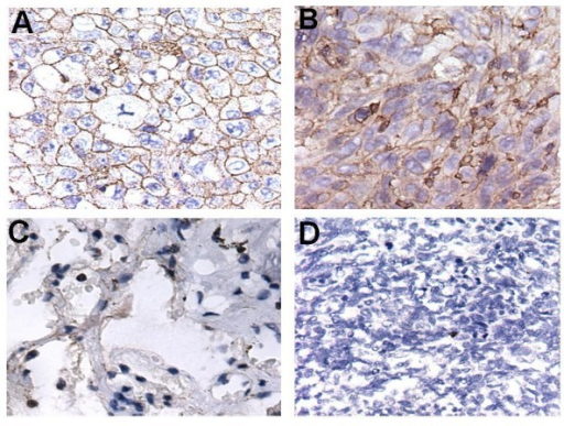 Subcellular localization of the antigen of McAb4E7. (A and B) The targeting antigen mainly located in the cellar membrane both in lung adenocarcinoma and squamous carcinoma (C) A little expression of the targeting antigen could be seen in the cytoplasm in the adjacent nontumourous lung tissues (D) The targeting antigen was not be found in the SCLC tissues; Magnifications: A-D × 40.