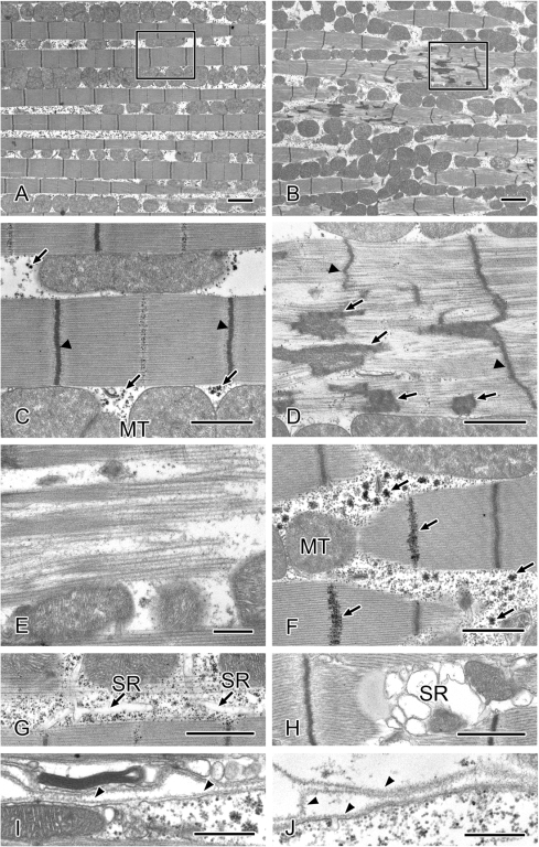 Representative electron micrographs of thoracic muscles in aged wild-type and tw mutant flies.(A, C, G, and I) Thirty-five-day-old wild-type fly muscles. (B, D, E, F, H, and J) Thirty-five-day-old tw mutant fly muscles. (A and B) Low-magnification images of muscles. (C and D) High-magnification view of the area bordered by the rectangle in Figs. 4A and B. (C) Normal sarcomere with regular Z-lines (arrowheads). (D) Z-lines (arrowheads) are irregular and often streaming. Nemaline bodies (arrows) in the muscle fiber. (E) Actin and myosin filaments are disorganized. (F) Glycogen granules (arrows) are accumulated. (G) Normal sarcoplasmic reticulum (SR). (H) SR is swollen. (I) Normal basement membrane. (J) The basement membrane (arrowheads) is duplicated and multilayered. MT: mitochondria. Bars: (A and B) 2 µm, (C, D, F, G, and H) 1 µm, and (E, I, and J) 500 nm.