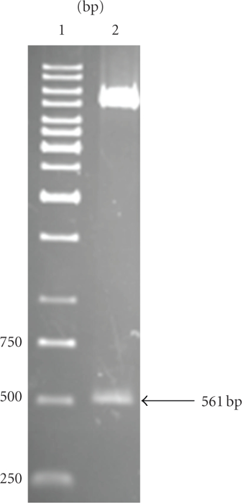 Confirmation of assembled plasmid containing the FGF1 gene. The pcDNA3.1/V5-His-TOPO-FGF1 plasmid was cleaved by HindIII and XhoI. Lane 1: DNA molecular weight markers. Lane 2: Two digestion fragments of 5433 bp and 561 bp.