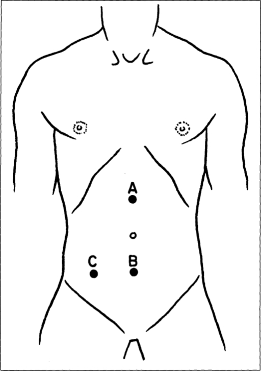 The Diagram Shows The Site Of Incision Used For Laparos Open I