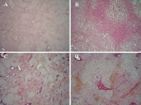 Example of regenerative nodular hyperplasia. Nodules of hyperplastic hepatocytes replace the normal liver parenchyma and are surrounded by atrophic plates without evidence of fibrosis (note the hemorrhagic changes close to atrophic plates). a Gordon and Sweet stain (×20); b Hematoxylin-eosin stain (×10); c Picrosirius stain (×20); d Picrosirius stain (×10)