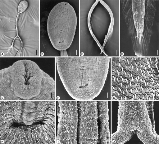 Scanning electron micrographs of Cercaria caribbea LVIII cercaria. (A) Ventral view of a cercarial body and bifurcated tail. Bar=50 µm. (B) A cercarial body showing the oral and ventral suckers, ventral view. Tegumental spines are densely distributed in anterior surface of the body. Bar=14 µm. (C) The bifurcated tails look like oars. Bar=17 µm. (D) On the tip of each furca, several spines are observed, which are larger than those of the general cuticular spination. Two sensory papillae with a long cilium are seen on the fin (lower) and 2 others are obsercved anterior to the tip (upper). Bar=3 µm. (E) On the lip of the oral sucker, sensory papillae with a short cilium are distributed, and peg-like spines are seen on the surface. Bar=3 µm. (F) Ventral sucker was premature, and a primordial tribocytic organ is seen posteriorly close to the ventral sucker. Bar=8 µm. (G) Peg-like tegumental spines densely distributed on the body surface and furcae. Bar=1 µm. (H) A tegumental groove or pit located posteriorly far from the tribocytic organ. Bar=3 µm. (I) Surface of a part of the tail stem revealing sensory papillae with a long cilium. Bar=3 µm. (J) Long-ciliated sensory papillae on the base of the furcae. Bar=3 µm.