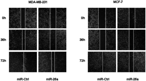 Ectopic restoration of miR-26a inhibited cell migration.In the wound healing assay, uniform scratches were made in MDA-MB-231 and MCF-7 cells, then serial photographs were obtained at indicated time posttransfection.