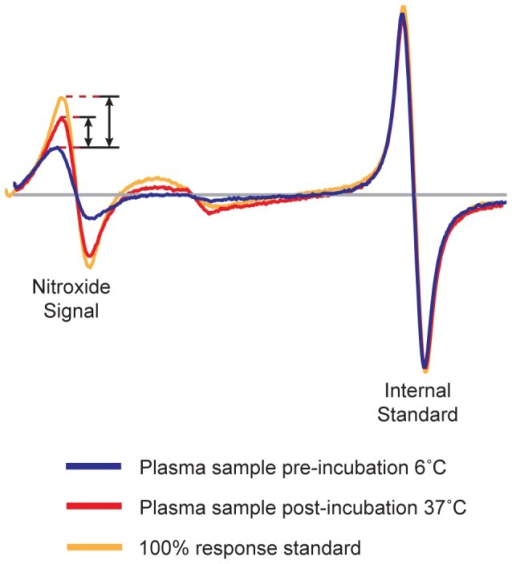Representative EPR spectra of spin-labeled apoA-I probe added to human plasma.The spectrum of spin-labeled apoA-I in apoB depleted plasma from a healthy human donor at 6°C (blue line) is compared to the spectra after a 15 minute incubation at 37°C (red line). The maximal nitroxide spectral response is obtained from spin-labeled apoA-I in an extended lipid-bound conformation (orange line). Sample response was normalized between instruments using a proprietary internal standard. Sample response was calculated by subtracting the peak amplitude at 6°C from the amplitude at 37°C and dividing by the amplitude of the 100% response standard.