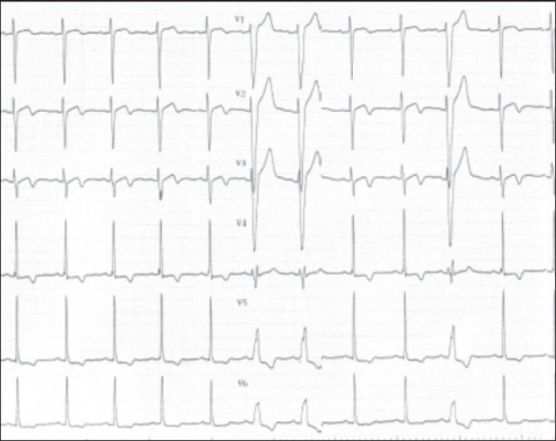 An electrocardiogram (ECG) on the 2nd hospital day. The ECG demonstrates transient left bundle branch block in response to low-level steady-state exercise