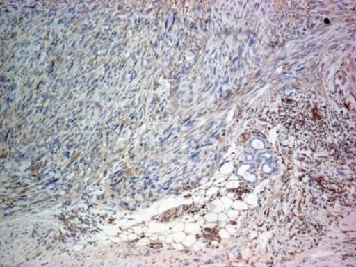 Immunohistochemical stain for vimentin: diffuse positive in tumor cells; hypodermis invasion (x 40)