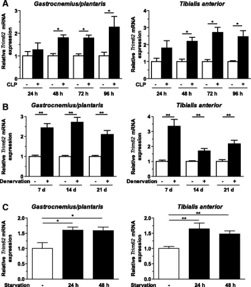 Trim62expression is increased during inflammation-, denervation- and starvation-induced muscle atrophy. (A) Quantitative RT-PCR (qRT-PCR) analyses of Trim62 expression in gastrocnemius/plantaris and tibialis anterior muscles at 24 hours, 48 hours, 72 hours and 96 hours after surgery, as indicated. CLP, Cecal ligation and puncture surgery. (B) qRT-PCR analyses of Trim62 expression in gastrocnemius/plantaris and tibialis anterior muscles 7 days, 14 days and 21 days after denervation or sham surgery. (C) qRT-PCR analyses of Trim62 expression in gastrocnemius/plantaris and tibialis anterior muscles of control mice (–, n =6) and mice deprived of food for 24 hours (n =6) or 48 hours (n =6), as indicated. Glyceraldehyde 3-phosphate dehydrogenase (Gapdh) expression was used as the reference in all assays. Data shown are fold changes of expression in sham-operated and untreated mice. Data are presented as mean ± SEM. **P <0.01, *P <0.05.