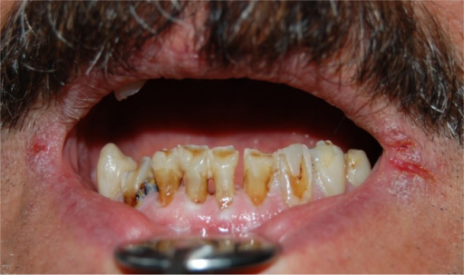 Cheilitis and cracked lips, and teeth cervical caries in a radiotherapeutic patient.