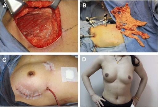 The omentum fills the defect well. (A) Upper outer quadrantectomy in the right breast. (B) Laparoscopically havested omentum with vessel pedicle. (C) Oncoplasty with omentum. (D) The outcome at 7 months after surgery, 3 months after radiation.