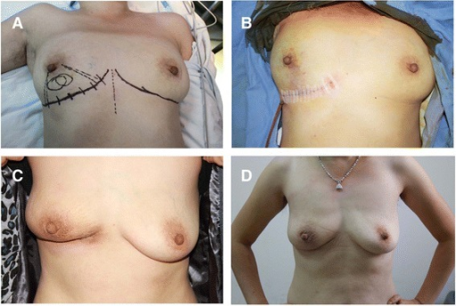 The omentum seems less susceptible to radiation. (A) Ductal carcinoma in situ in the lower inner quadrant of the right breast. (B) Oncoplasty with omentum. The outcome (C) 4 months after surgery, 3 months after radiation, asymmetry demonstrated; (D) 11 months after surgery, 10 months after radiation, recovered with symmetry.