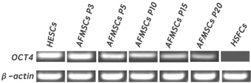 Stem cells specific marker Oct—4 expressing in AFMSCs in passage 3,5,10,15 and 20.Human embryonic stem cells were used as positive control and human skin fibroblast cells were used as negative control. β-action served as the internal control. Oct4 expressed positively in AFMSCs and the expression of Oct4 gradually decreased as the passage number increased.
