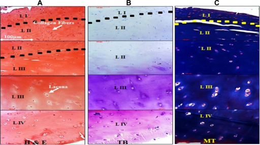 Histologic staining of the native hyaline cartilage to highlight the cellular and matrix properties. All panels are displayed at 20× magnification. However, portions from each layer (LI-LIV) have been exhibited to generate the continuity of the tissue. (A) Hematoxylin and eosin (H&E; cellular organization), (B) toluidine blue (TB; total proteoglycan), and (C) Masson trichrome (MT; total collagen) staining.
