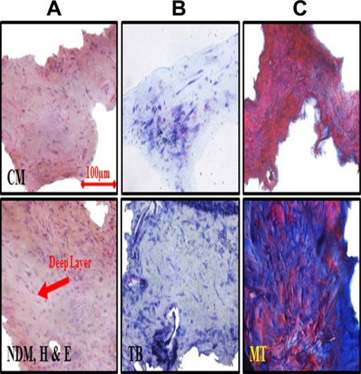 Histological studies of the 3D-reconstructed hyaline cartilage grown in either classical medium (CM) or newly defined medium (NDM), using collagen gel as a scaffold, at 20× magnification. (A) Hematoxylin and eosin (H&E) staining, (B) toluidine blue (TB) staining, and (C) Masson trichrome (MT) staining.