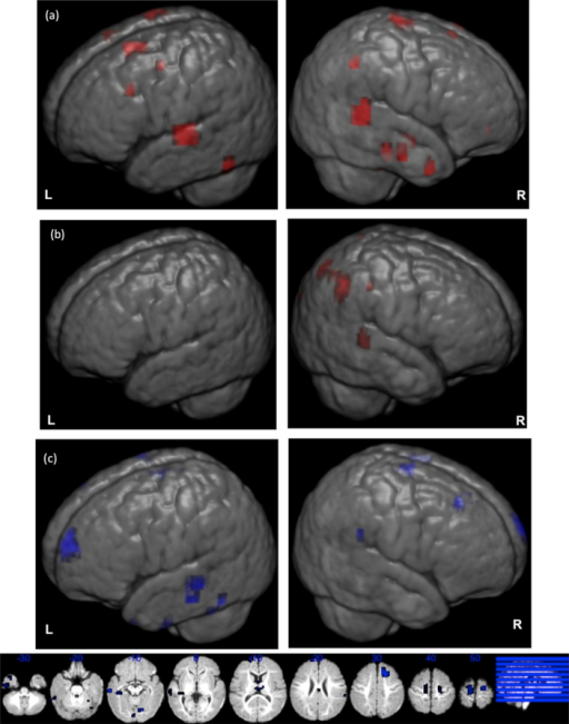 Neutral voice greater than non voice contrast. Representation on an age-appropriate infant template (Sanchez, Richards, & Almli, 2012) of the neutral voice greater than non voice condition contrast. (a) Low risk group, (b) high risk group, (c, d) group differences in the condition contrast; (L) left hemisphere, and (R) right hemisphere. See also Supplementary Tables 2 and 3