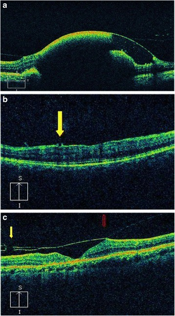 a Optical coherence tomogram (OCT) of a patient with Valsalva retinopathy showing hemorrhage under internal limiting membrane (ILM). b OCT of a patient with Valsalva retinopathy 6 weeks after laser photodisruption. Note the opening in ILM (yellow arrow). c OCT of a patient after Nd:YAG laser hyaloidotomy. Note the defect in posterior hyaloid membrane (yellow arrow) and the Vitreomacular traction (red arrow)