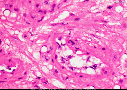 Histopathology: The biopsy shows a well-circumscribed nodule with interlacing bands of smooth muscle and intercalation of numerous blood vessels within the tumor.