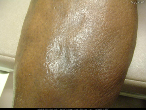 There are multiple firm hyperpigmented indurated, bound down plaques extending from bilateral inner thighs to bilateral shins.