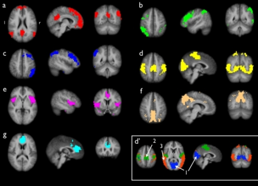 Group clustered resting-state networks.Group clustering of 3 Tesla resting-state fMRI data of a group of 26 subjects revealed 7 resting-state networks (RSNs). 1a shows a functional connected network consisting of the posterior cingulate/precuneus, medial frontal regions and bilateral parietal/temporal regions, a RSN known as the default mode network. 1b and 1c show lateralized parietal-frontal networks, networks that are often reported in attention and memory processing. 1d shows a joint network of both sensorimotor and visual networks. Iteratively clustering partitioned this cluster in 3 sub-clusters, shown in clustermap d'. The results showed separate clusters for primary visual regions (cluster d'-1), primary sensorimotor regions (cluster d'-2) and extra-striate visual regions (cluster d'-3). 1e shows a network of bilateral insular regions and posterior cingulate cortex. 1f and 1g represent singular clusters consisting of, respectively, a posterior part of Brodmann Area 7 and an anterior part of the cingulate cortex. The clustered networks show resemblance with previous reported RSNs.