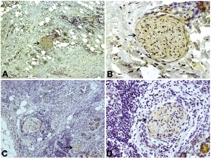 Myelin sheath immunostaining in different group.MPP immunostaining of pancreatic cancer tissue in the euglycemia group (A, B, arrowhead) and hyperglycemia group (C, D, arrowhead). The left panel shows an original magnification of 100×, and the right panel an original magnification of 400×. The frequency of moderate to strong MPP staining of nerves was significantly lower in the hyperglycemia group than in the euglycemia group. Figure arrowheads indicate the immunostainings.