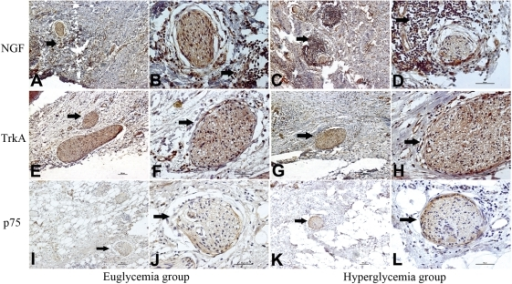 NGF, TrkA, and p75 immunostaining of pancreatic cancer tissue in the euglycemia group and hyperglycemia group.A, C, E, G, I, K show an original magnification of 100×, and B, D, F, H, J, L an original magnification of 400×. The frequency of moderate to strong NGF staining of cancer cells was significantly higher in the hyperglycemia group than that in the euglycemia group (arrowhead). The NGF stain of nerves was not significantly different between the two groups. The moderate to strong TrkA stainings were also present in the two groups (arrowhead) but with no significant difference. The frequency of moderate to strong p75 staining of nerves (arrowhead) was significantly higher in the hyperglycemia group than that in the euglycemia group. Figure arrowheads indicate the immunostainings.